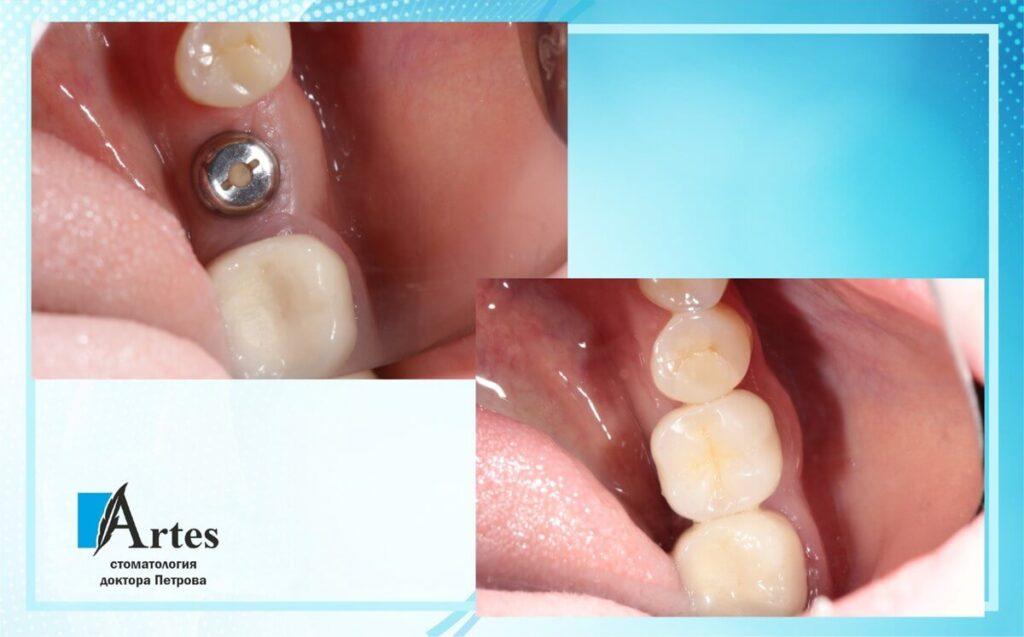 Операция имплантации зубов 2