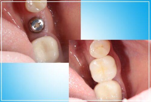 Операция имплантации зубов