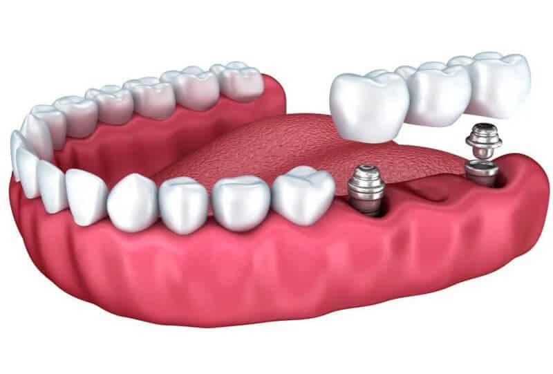 Протезирование ряда зубов