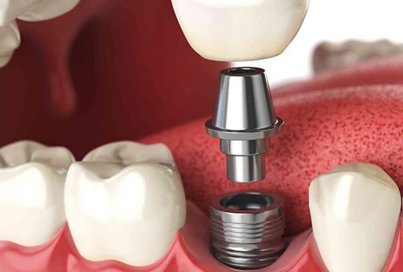 Протезирование зуба на импланте